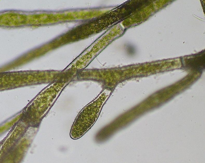 Нить зеленой водоросли под микроскопом